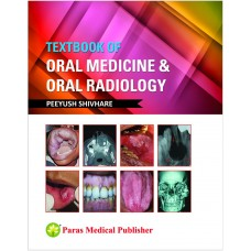 Textbook of Oral Medicine & Oral Radiology 1st Edition 2018 By Peeyush Shivhare