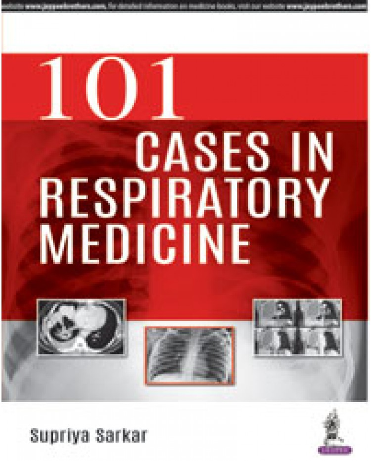 101 Cases in Respiratory Medicine 1st Edition 2018 By Supriya Sarkar