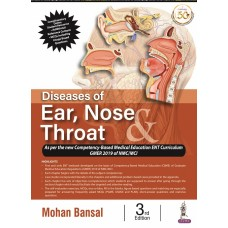 Diseases of Ear,Nose and Throat; 3rd Edition 2021 Mohan Bansal