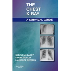 The Chest X-Ray A Survival Guide By Gerald De Lacey Morley Simon Berman Laurence