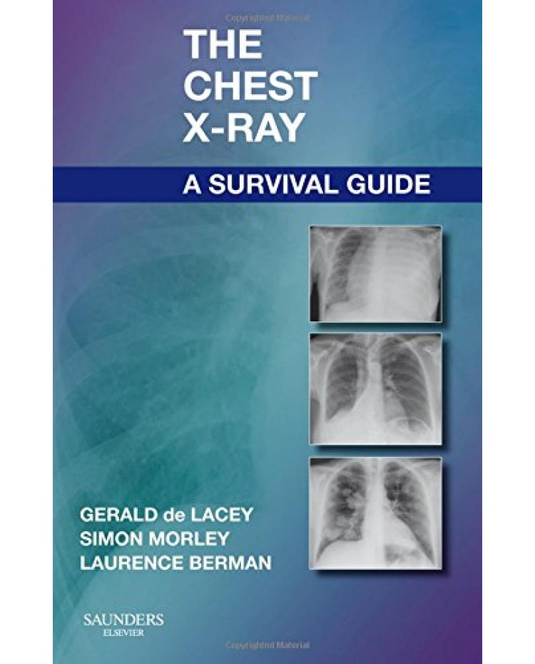 The Chest X-Ray: A Survival Guide:Gerald de Lacey MA FRCR