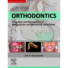Orthodontics Diagnosis of & Management of Malocclusion & Dentofacial Deformities 3rd Edition 2019 By Om Prakash Kharbanda Very Soon
