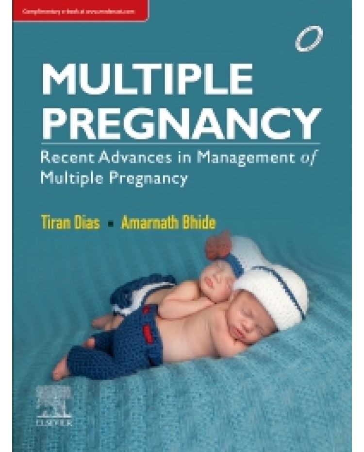 Multiple Pregnancy 1st Edition Recent Advances in Management of Multiple Pregnancy