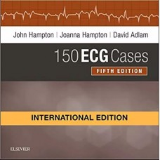 150 Ecg Cases International Edition 5th edition 2019 By John Hampton