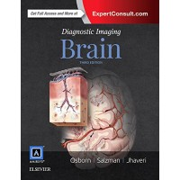 Diagnostic Imaging: Brain 3rd Edition