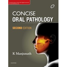 Concise Oral Pathology 2nd Edition 2017 By k  Manjunath