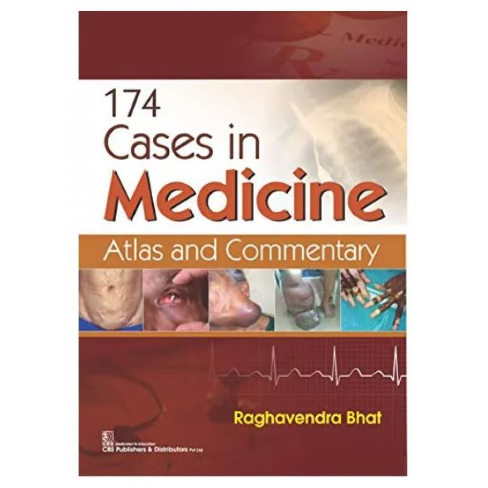 174 Cases In Medicine Atlas And Commentary;1st Edition 2021 By Raghavendra Bhat