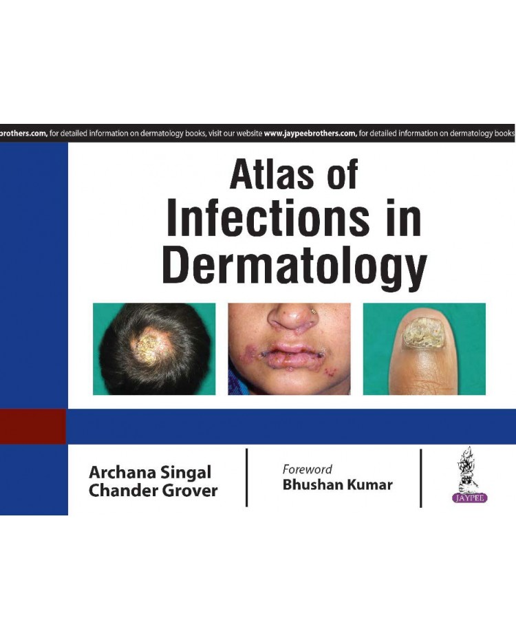 Atlas of Infections in Dermatology