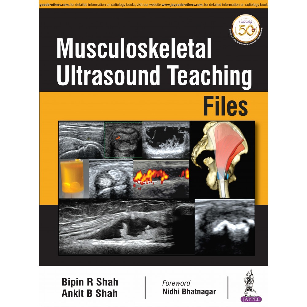 Musculoskeletal Ultrasound Teaching Files
